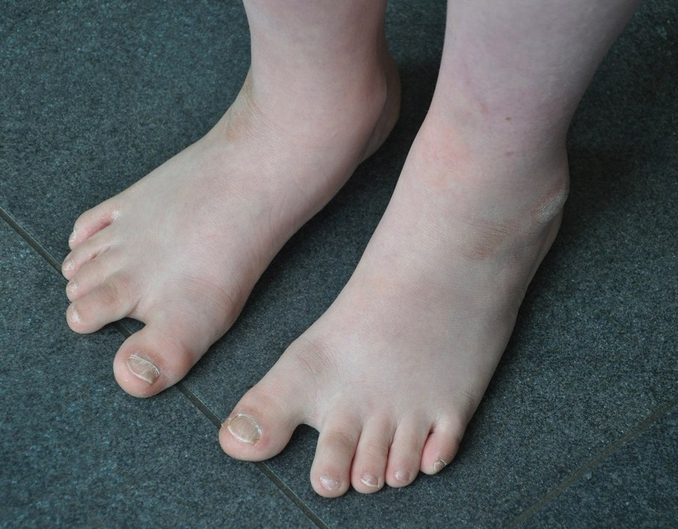 Feet of a boy with Down Syndrome