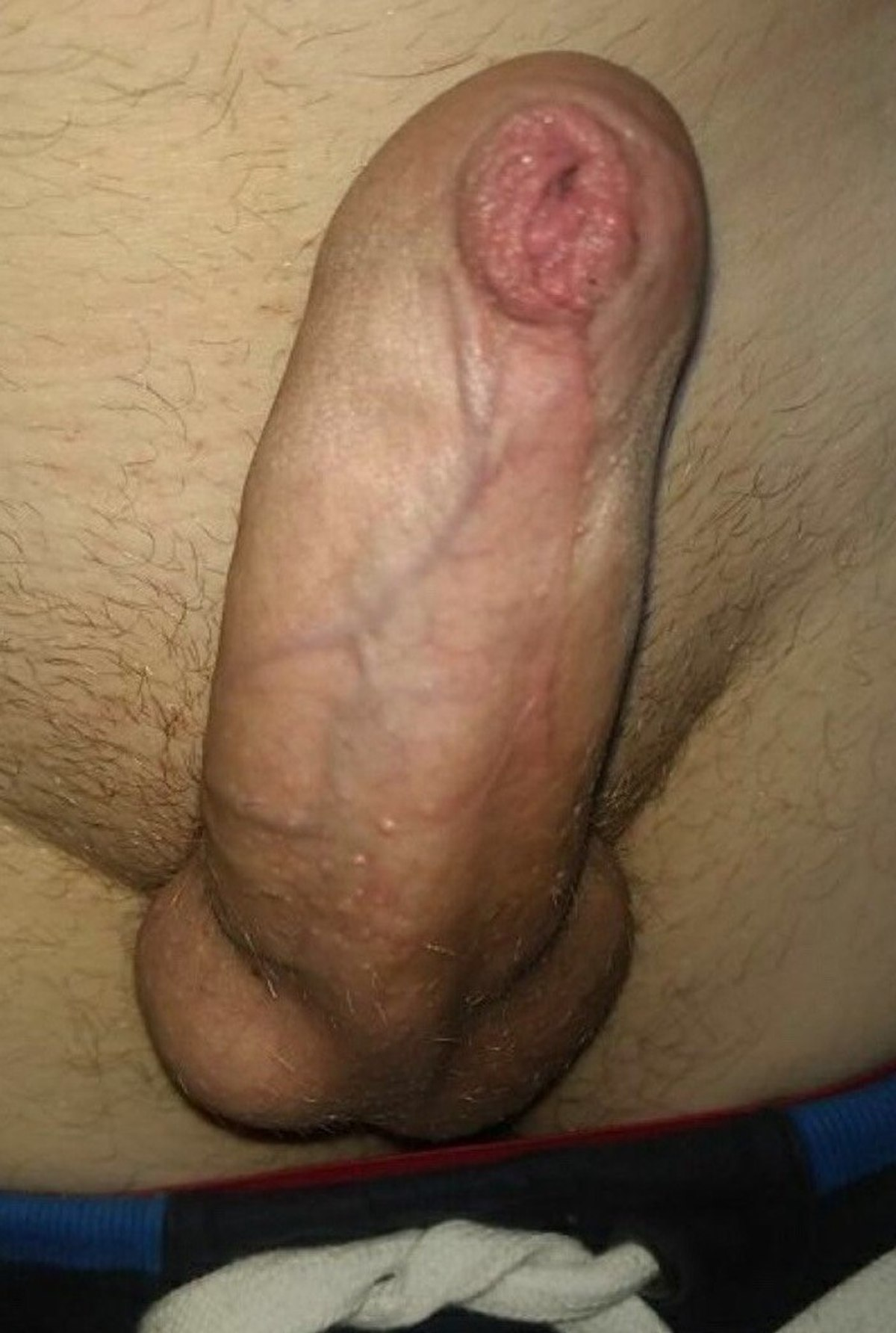 Tight foreskin when erect