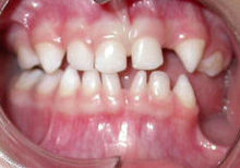 Hypodontia Bloch-Sulzberger syndrome.jpg