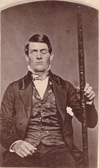 Phineas Gage GageMillerPhoto2010-02-17 Unretouched Color Cropped.jpg