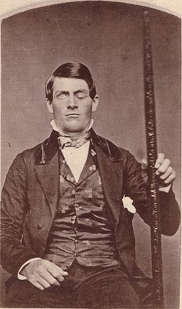 Who Is Phineas Gage?