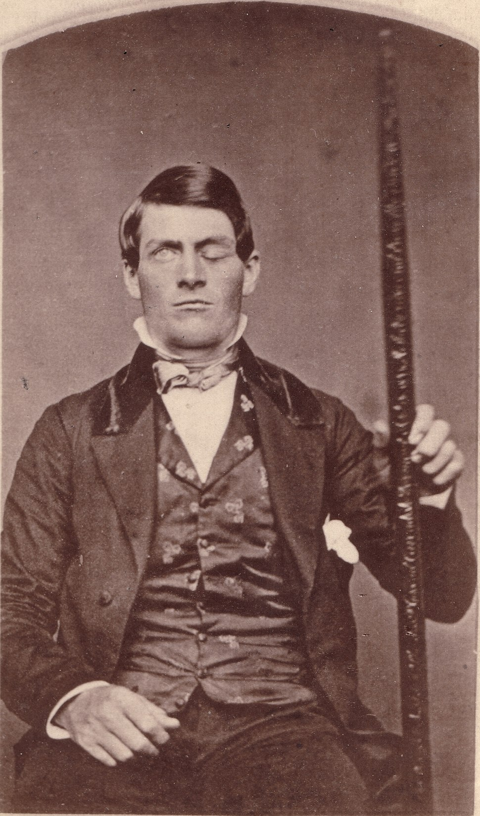 Phineas Gage GageMillerPhoto2010-02-17 Unretouched Color Cropped