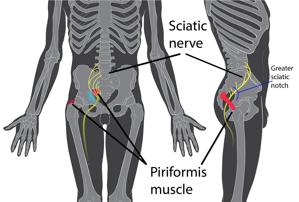 Piriformis Syndrome Wikipedia