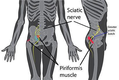 Piriformis syndrome.jpg