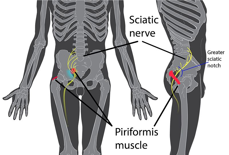File:Piriformis syndrome.jpg