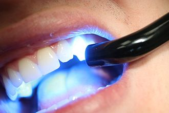 Dental composite - A hand-held wand that emits primary blue light (λmax=450-470nm) is used to cure the resin within a dental patient's mouth.