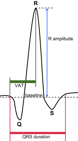 QRS complex - Schematic representation of the QRS complex.