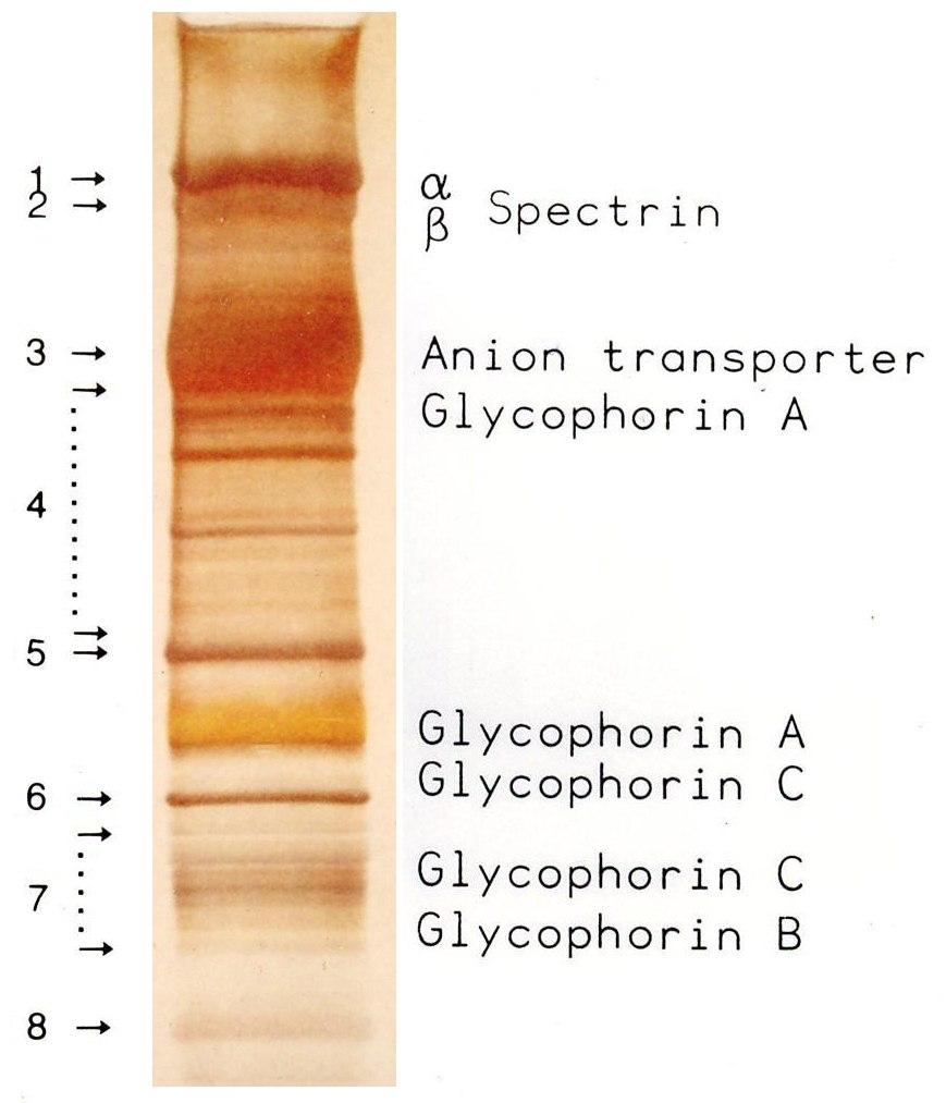 RBC Membrane Proteins SDS-PAGE gel