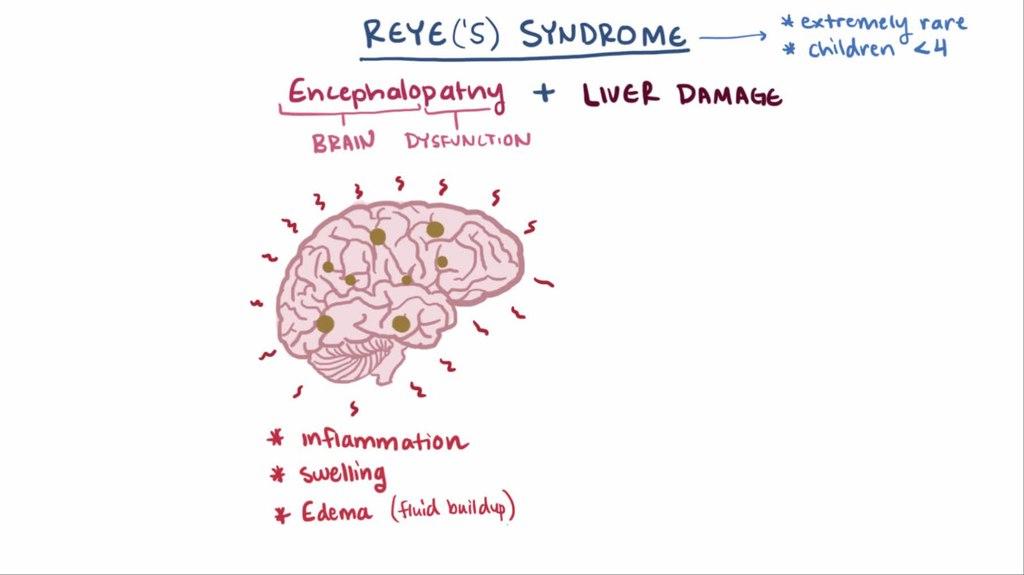 Reye S Syndrome And Kawasaki Disease Question