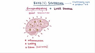 ملف:Reye syndrome video.webm
