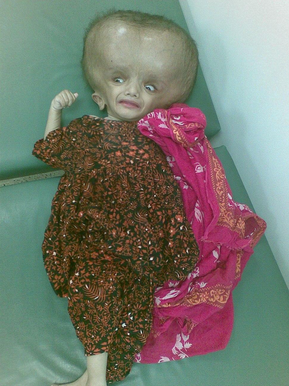 5fa3e3ada تضخم حجم الرأس بشدة بسبب استسقاء الدماغ في طفلة عمرها 11 شهر