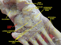 Slide6CEC5 - Cuboid bone.png
