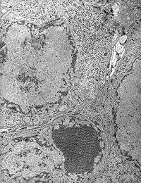 St. Louis Encephalitis (SLE) virus EM PHIL 1871 lores.JPG
