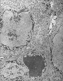 "Electron micrograph of ""Saint Louis encephalitis virus"" seen in a mosquito salivary gland"