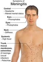 talk:meningitis/archive 1 - wikipedia, Skeleton
