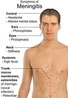 Symptoms of Meningitis.png