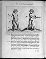 Two human figures with abnormalities Wellcome L0033299.jpg