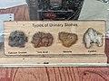 Types of Urinary Stones.jpg