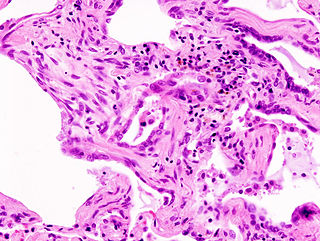 Idiopathic interstitial pneumonia pneumonia located in the lung parenchyma of unknown cause