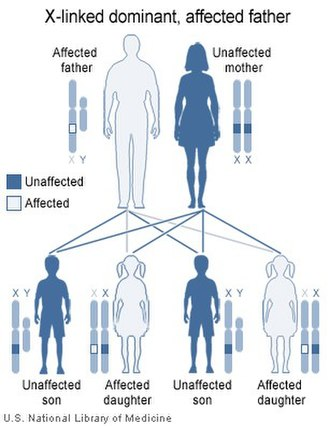 X-linked dominant inheritance - Image: X link dominant father