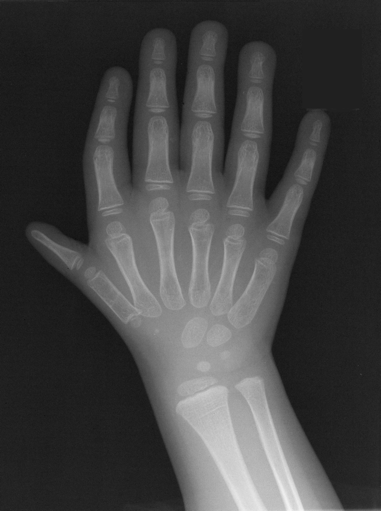 File:X-ray TPT with polydactyly 2.tiff