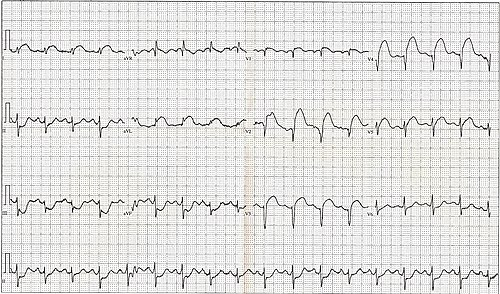 12 Lead EKG ST Elevation tracing only.jpg