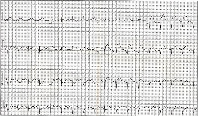 Myocardial Infarction Ecg. +myocardial+infarction+ecg