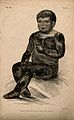 A boy with a variety of icthyosis, a skin disease, which in Wellcome V0007416.jpg