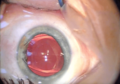 Augenoperation-implantierbare-kontaktlinse-09.png