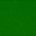 Bacterial Cluster (After image enhancement).png