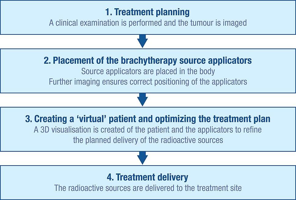 Brachytherapy procedure flow