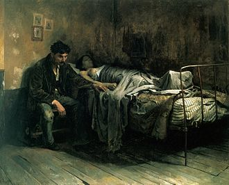 History of tuberculosis - La Miseria by Cristóbal Rojas (1886). Rojas was suffering from tuberculosis, when he painted this. Here he depicts the social aspect of the disease, and its relation with living conditions at the close of the 19th century.