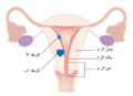 Diagram showing stage 1A and 1B cancer of the womb CRUK 196-ar.png