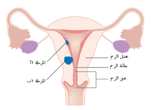 A diagram of stage IA and IB endometrial cancer