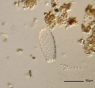 Testate amoebae - Euglypha tuberculata, a species with a siliceous autogenic test.