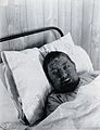 Gloucester smallpox epidemic, 1896; Mr Worgan Wellcome V0031463.jpg