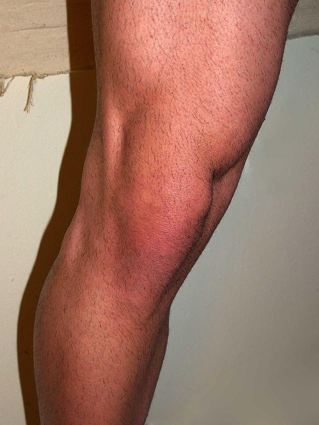 dureri de picioare sub articulația șoldului