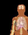 Metastazes-vietos-simptomai.png