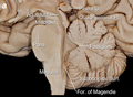 Midline sagittal view of the brainstem and cerebellum.png