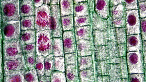 Mitotic Stages in Apical Meristem of Allium Root Tip (37385550196)