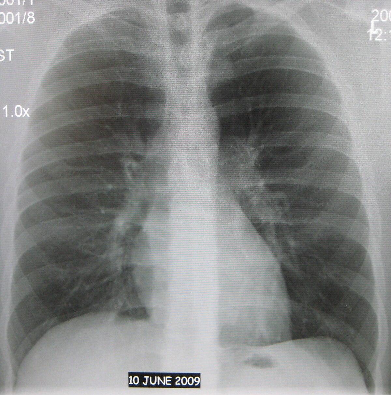 Рентгенология скачать книги