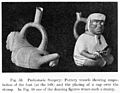 Peruvian pottery vessels showing amputation of the foot Wellcome M0003697.jpg