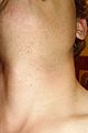 Pseudofolliculitis barbae.jpg