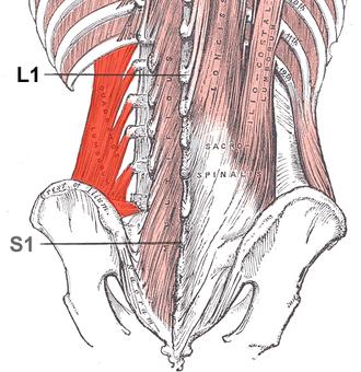 Quadratus lumborum muscle - Muscles of the posterior abdominal wall (Quadratus lumborum visible at bottom left.)