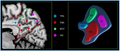 ROI-based parcellation of human posteromedial cortex.png