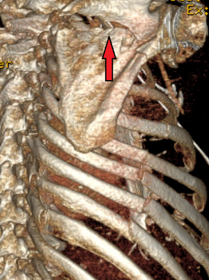 Scapular Fracture Wikipedia