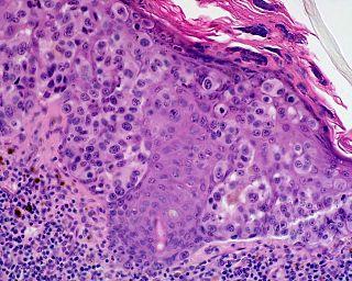 Lentigo maligna melanoma Medical condition