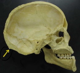 Skull - midsaggital section P.2005 - Inion.png