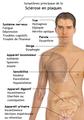 Symptômes de la sclérose en plaques.png