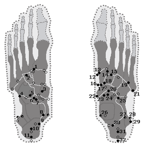 Tarsus (skeleton) - Location of accessory tarsal bones